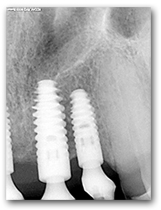 X-ray showing 2 Dental Implants on upper jaw left side