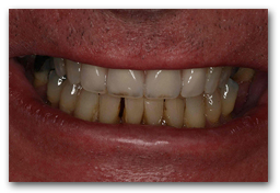 Smile BEFORE treatment. Patient is wearing a Partial Denture.