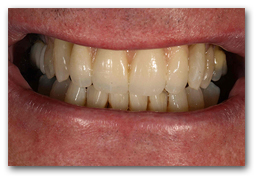 Smile AFTER Treatment with New Teeth attached to the Dental Implants