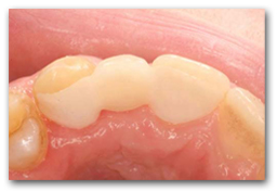 Occlusal after treatment