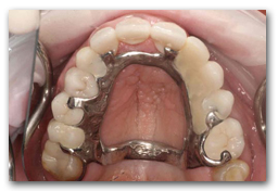 View of Chrome-Cobalt Partial Denture fitted in the mouth