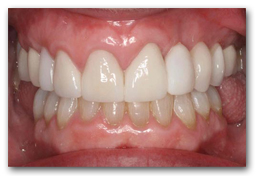 Front view after treatment with a combination of new Partial Denture and Porcelaiin Veneers and Crowns