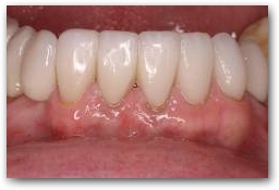 After treatment with 6 Porcelain Veneers