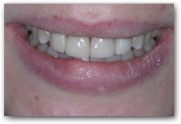 Smile with composite - before