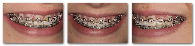 During orthodontic treatment